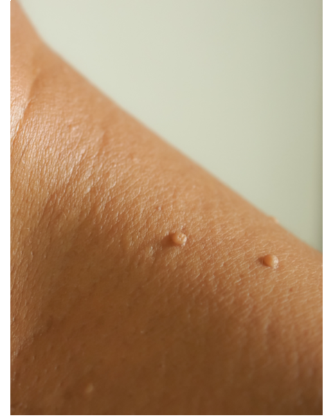 How to Treat Skin Tags