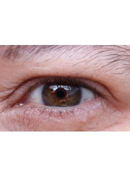 How to Avoid an Eye Infection
